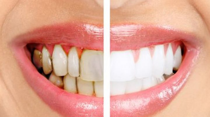Top Natural Home Remedies for Gingivitis