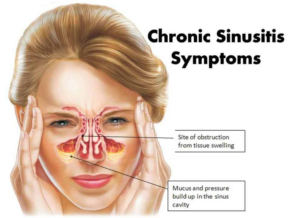 Chronic Sinusitis SymptomsChronic Sinusitis Symptoms