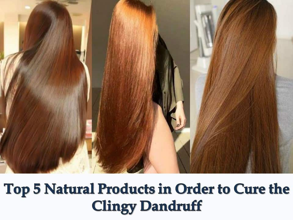 Top 5 Natural Products in Order to Cure the Clingy Dandruff