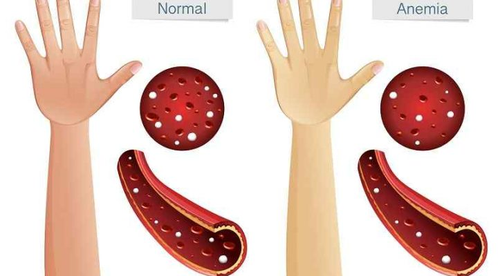 What Causes Anemia