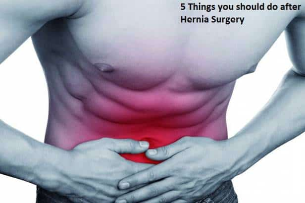 5 Things you should do after Hernia Surgery