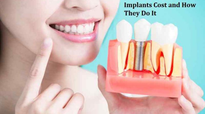 How Much Dental Implants Cost and How They Do It